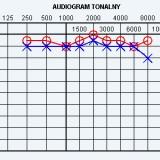 Czy dźwięk jest słyszalny ?, 2012 (źródło: www.e-audiologia.pl)